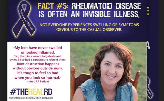 Fact #5 Rheumatoid disease is often an invisible illness: not everyone experiences swelling or symptoms obvious to the casual observer #therealRD #RA